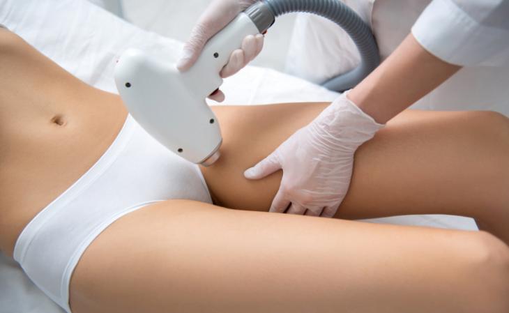 8 modelos de depilação íntima, principais métodos e cuidados - 4