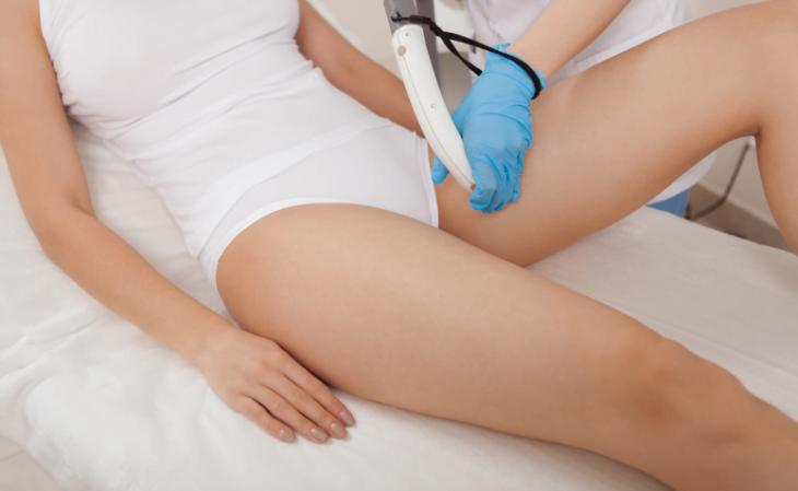 8 modelos de depilação íntima, principais métodos e cuidados - 5